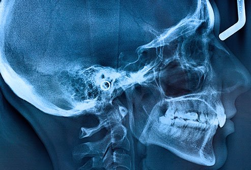 Broken jaw fractured skull.
