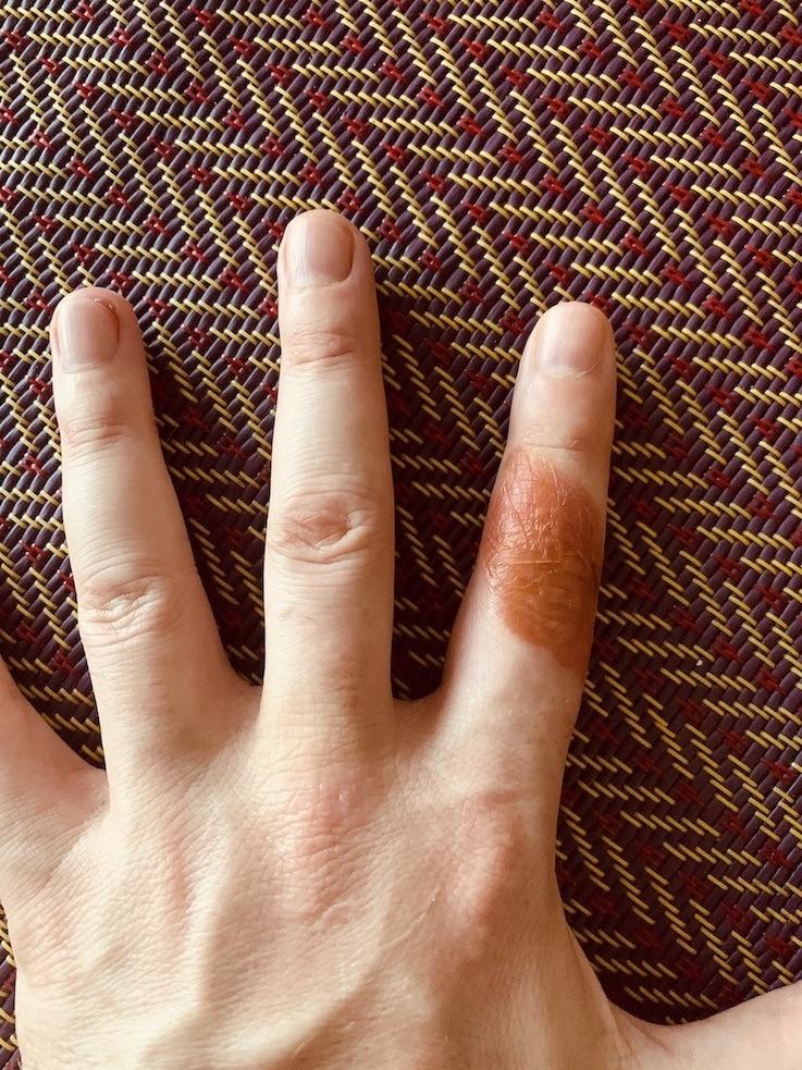 Second degree finger burn.